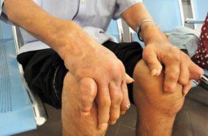 Phương pháp điều trị bệnh Gout kết hợp với IZUMIO nước giàu hydrogen 4