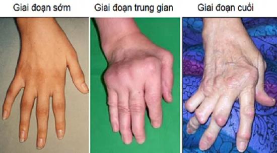 Các bệnh của Khớp - tìm hiểu nguyên nhân và cách điều trị an toàn hiệu quả 12